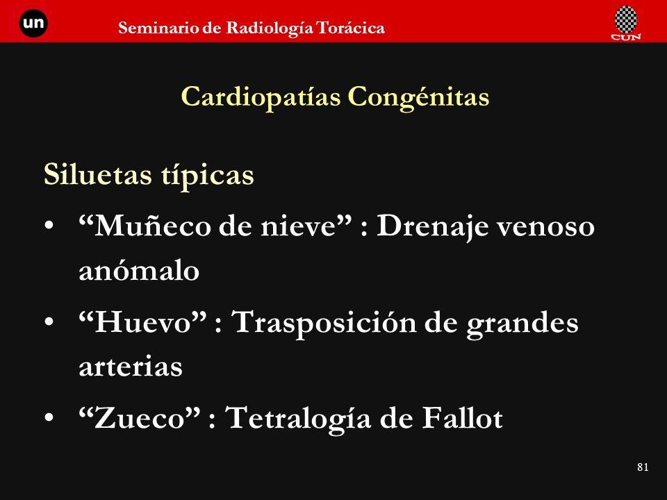 Seminario de Radiología Torácica 81 Cardiopatías Congénitas Siluetas típicas Muñeco de nieve : Drenaje venoso anómalo Huevo : Trasposición de grandes