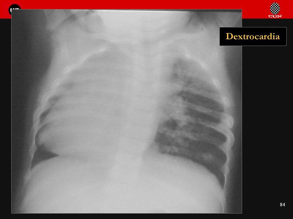 Seminario de Radiología Torácica 84 Dextrocardia