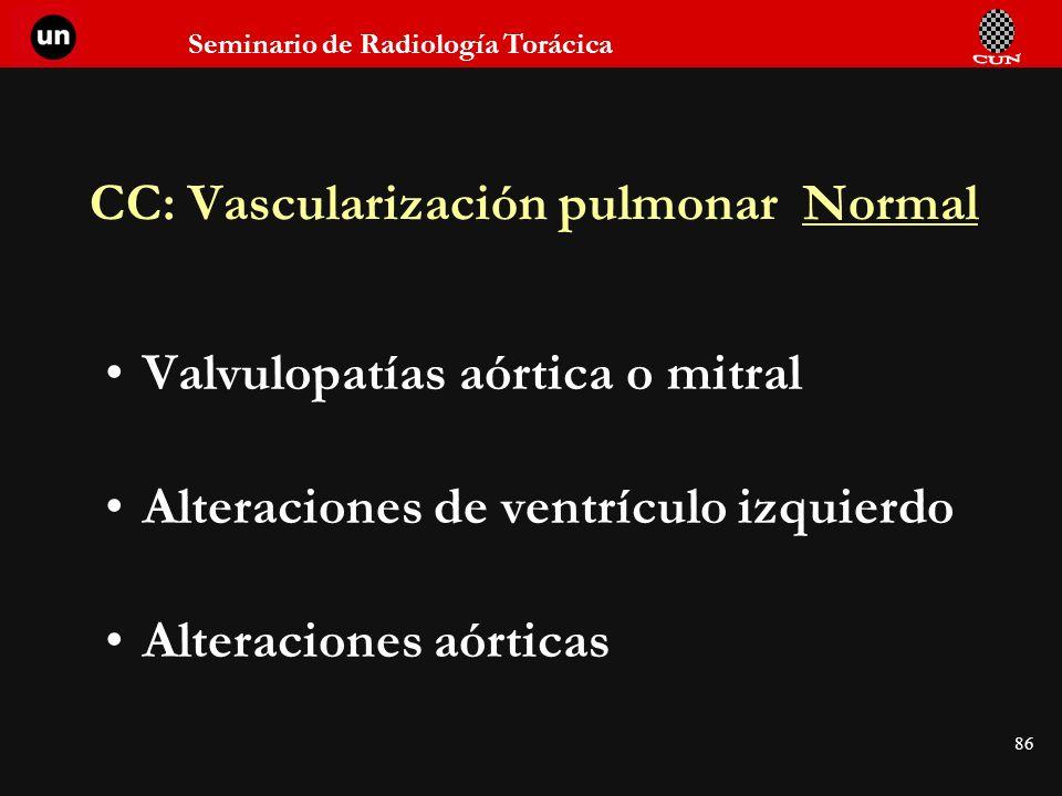 Seminario de Radiología Torácica 86 CC: Vascularización pulmonar Normal Valvulopatías aórtica o mitral Alteraciones de ventrículo izquierdo Alteracion