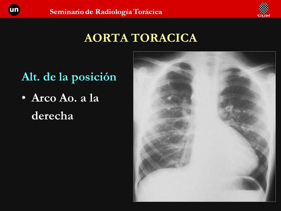 Seminario de Radiología Torácica 87 AORTA TORACICA Alt. de la posición Arco Ao. a la derecha