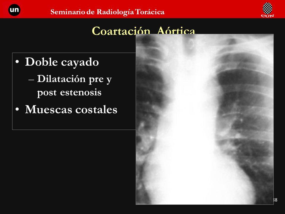 Seminario de Radiología Torácica 88 Coartación Aórtica Doble cayado –Dilatación pre y post estenosis Muescas costales