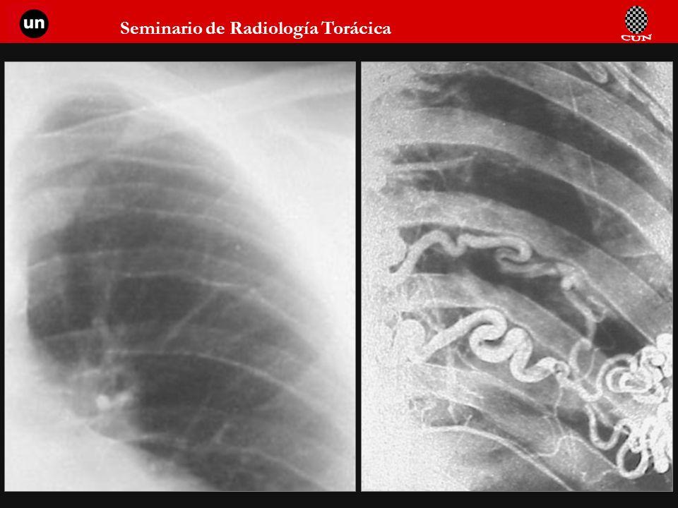 Seminario de Radiología Torácica 89