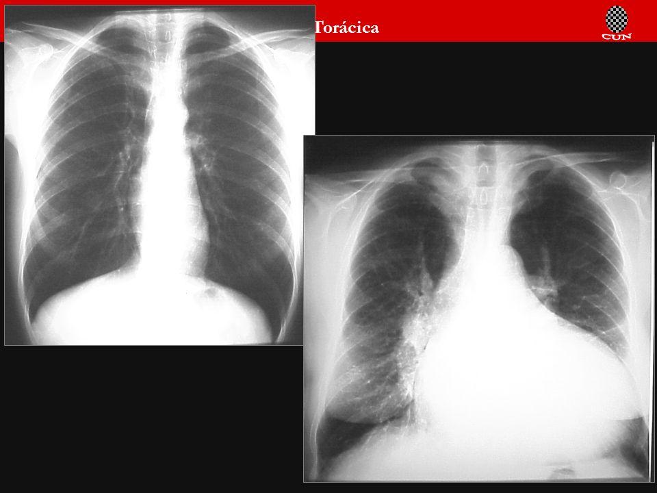 Seminario de Radiología Torácica 80 Tórax infantil normal
