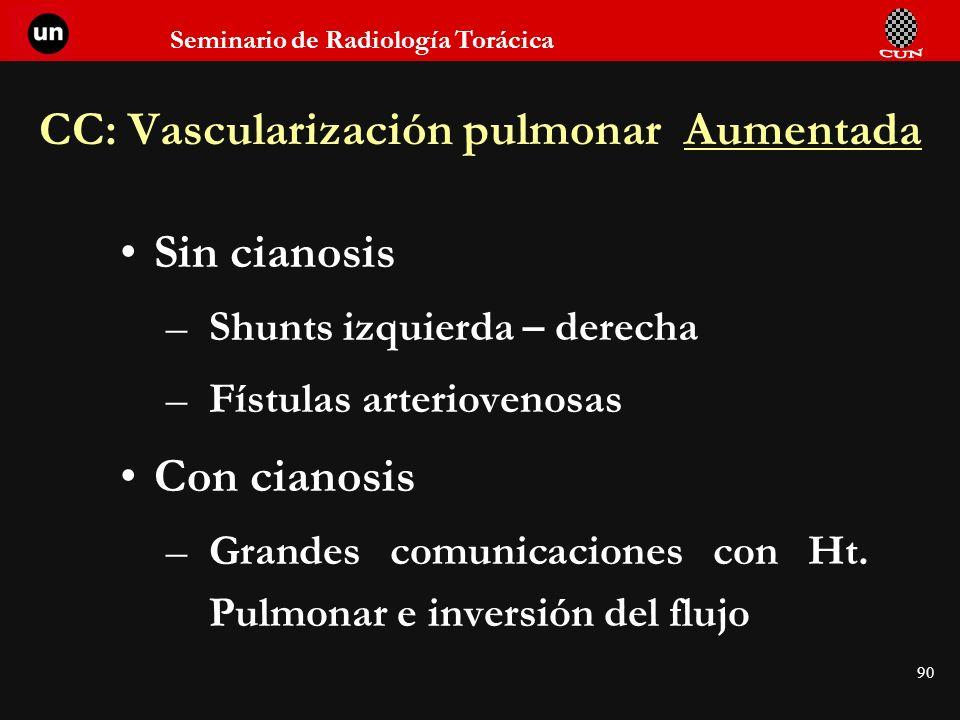 Seminario de Radiología Torácica 90 CC: Vascularización pulmonar Aumentada Sin cianosis –Shunts izquierda – derecha –Fístulas arteriovenosas Con ciano