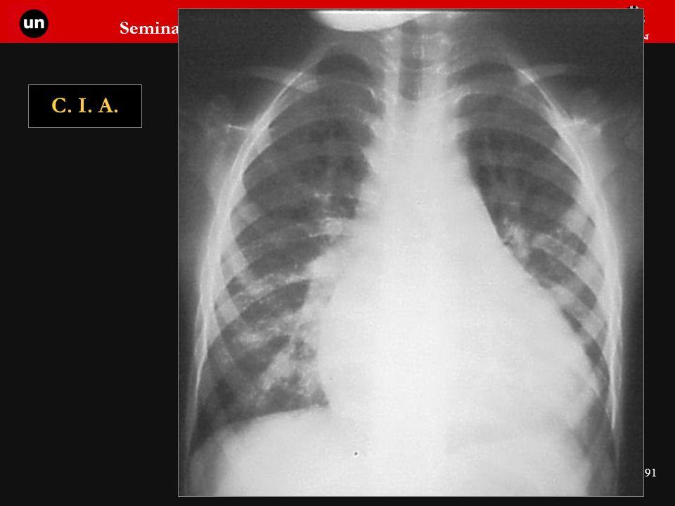 Seminario de Radiología Torácica 91 C. I. A.