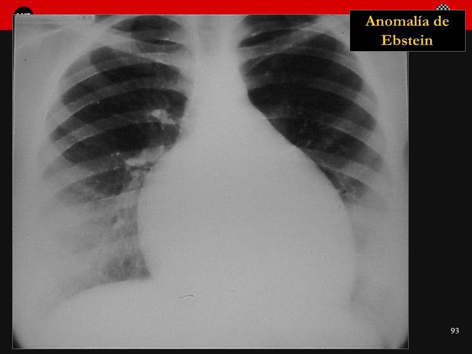 Seminario de Radiología Torácica 93 Anomalía de Ebstein
