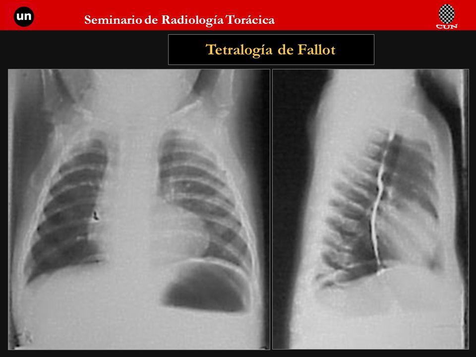 Seminario de Radiología Torácica 94 Tetralogía de Fallot