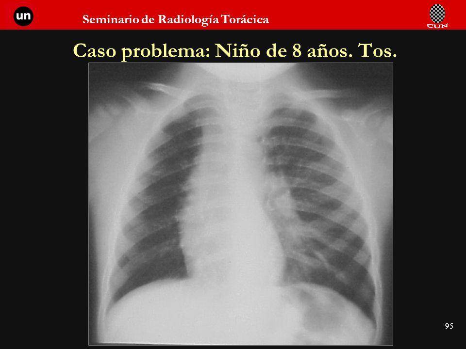 Seminario de Radiología Torácica 95 Caso problema: Niño de 8 años. Tos.
