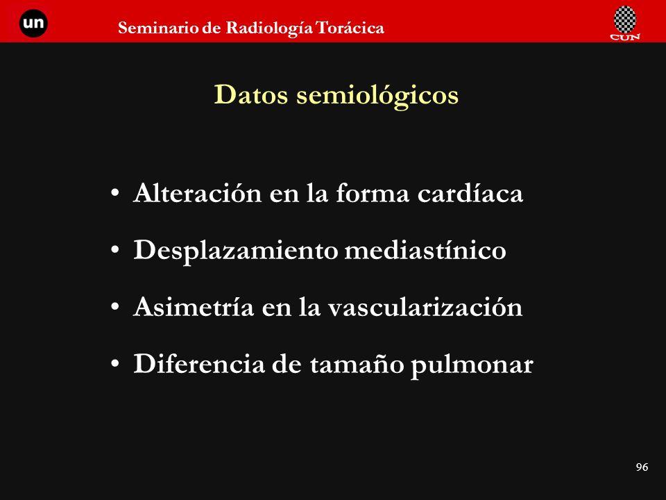 Seminario de Radiología Torácica 96 Datos semiológicos Alteración en la forma cardíaca Desplazamiento mediastínico Asimetría en la vascularización Dif