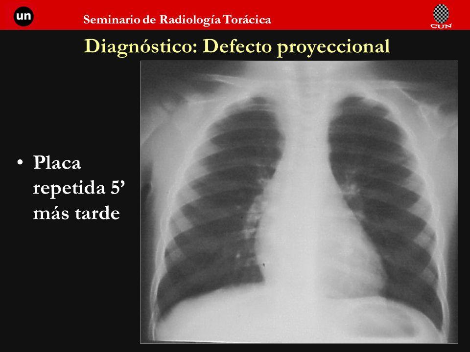 Seminario de Radiología Torácica 98 Diagnóstico: Defecto proyeccional Placa repetida 5 más tarde