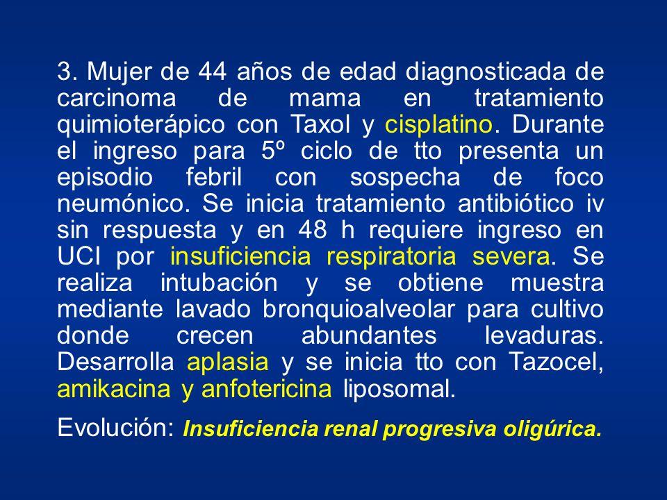 3. Mujer de 44 años de edad diagnosticada de carcinoma de mama en tratamiento quimioterápico con Taxol y cisplatino. Durante el ingreso para 5º ciclo