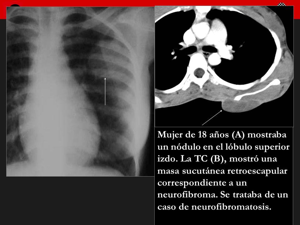 Seminario de Radiología Torácica 12 Mujer de 18 años (A) mostraba un nódulo en el lóbulo superior izdo. La TC (B), mostró una masa sucutánea retroesca