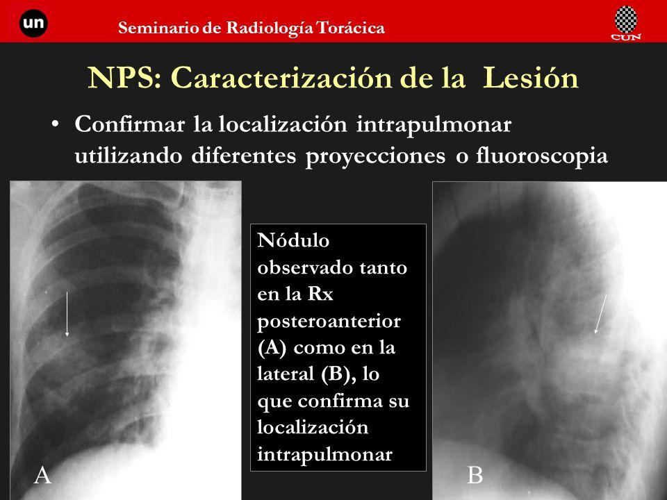 Seminario de Radiología Torácica NPS: Caracterización de la Lesión Confirmar la localización intrapulmonar utilizando diferentes proyecciones o fluoro