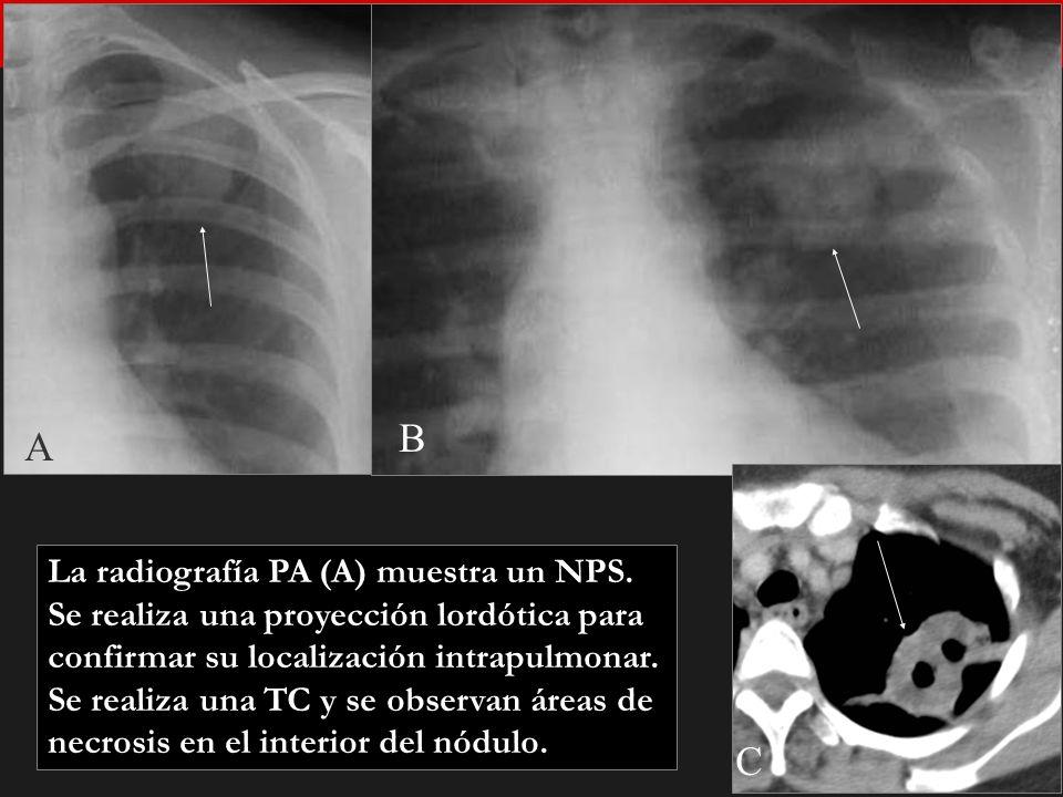 Seminario de Radiología Torácica 14 A B C La radiografía PA (A) muestra un NPS. Se realiza una proyección lordótica para confirmar su localización int