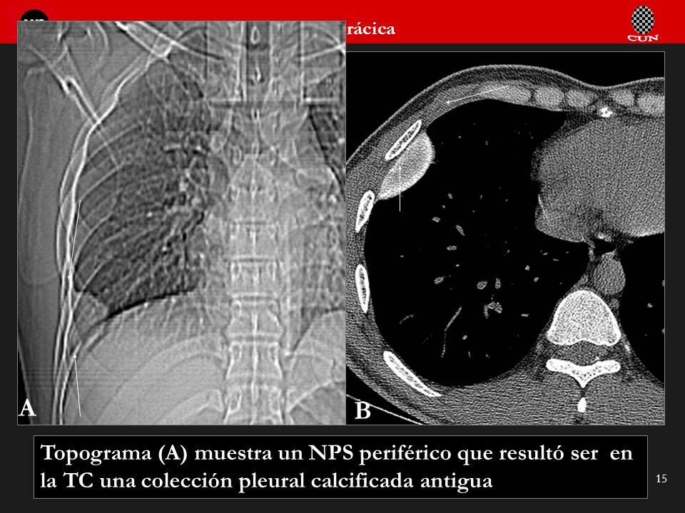 Seminario de Radiología Torácica 15 Topograma (A) muestra un NPS periférico que resultó ser en la TC una colección pleural calcificada antigua A B