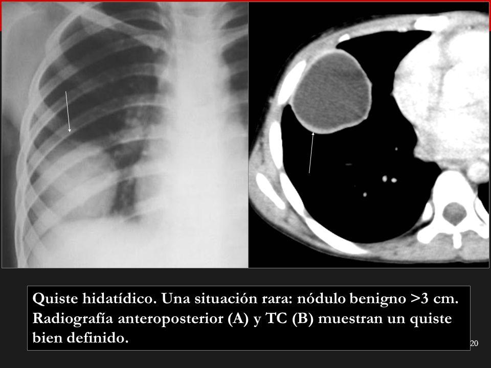Seminario de Radiología Torácica 20 Quiste hidatídico. Una situación rara: nódulo benigno >3 cm. Radiografía anteroposterior (A) y TC (B) muestran un