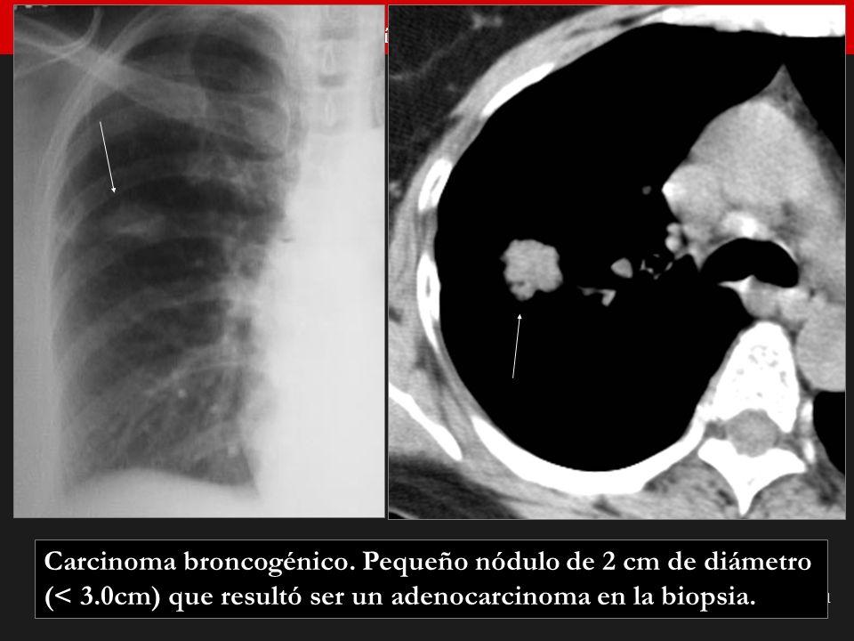Seminario de Radiología Torácica 21 Carcinoma broncogénico. Pequeño nódulo de 2 cm de diámetro (< 3.0cm) que resultó ser un adenocarcinoma en la biops