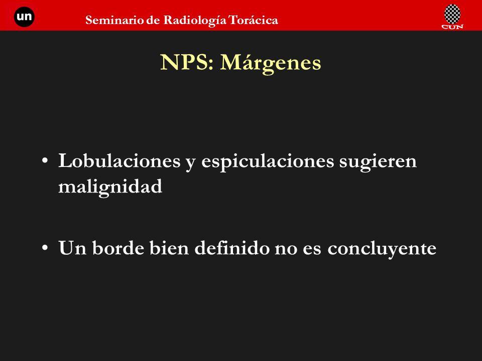 Seminario de Radiología Torácica NPS: Márgenes Lobulaciones y espiculaciones sugieren malignidad Un borde bien definido no es concluyente