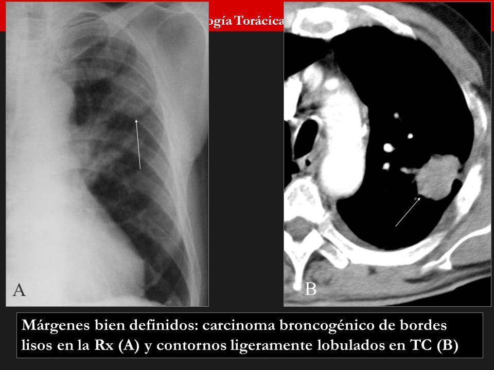 Seminario de Radiología Torácica 26 A B Márgenes bien definidos: carcinoma broncogénico de bordes lisos en la Rx (A) y contornos ligeramente lobulados