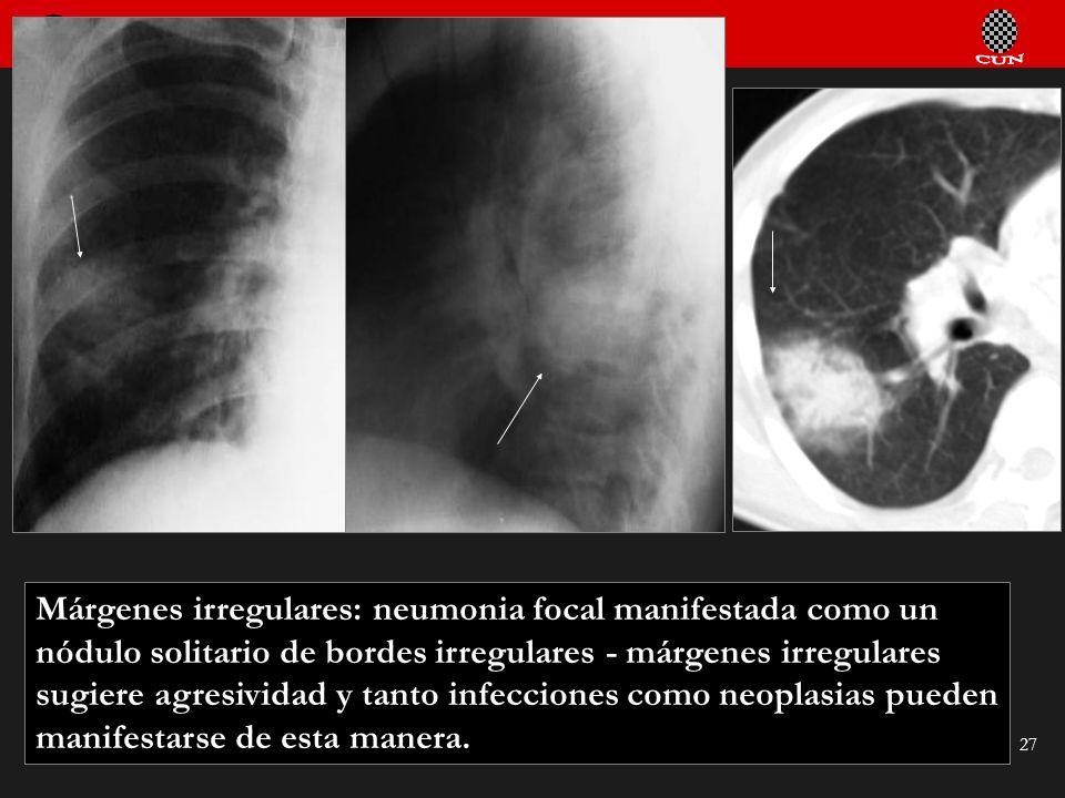Seminario de Radiología Torácica 27 Márgenes irregulares: neumonia focal manifestada como un nódulo solitario de bordes irregulares - márgenes irregul
