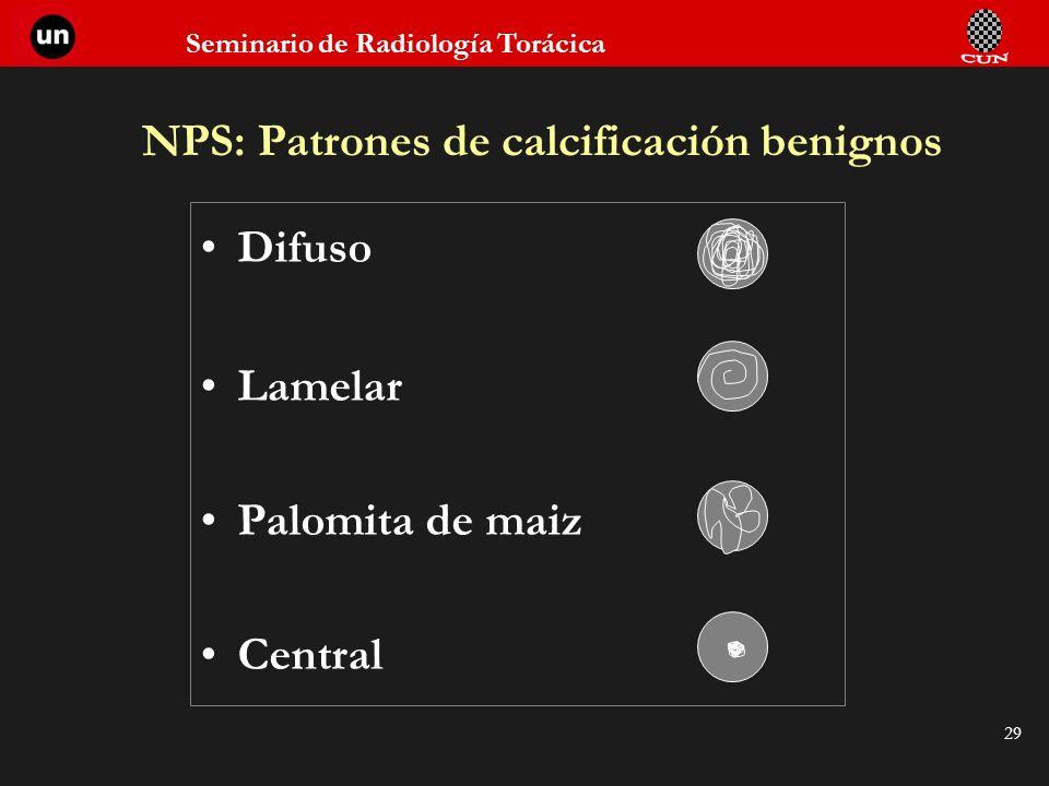 Seminario de Radiología Torácica 29 NPS: Patrones de calcificación benignos Difuso Lamelar Palomita de maiz Central