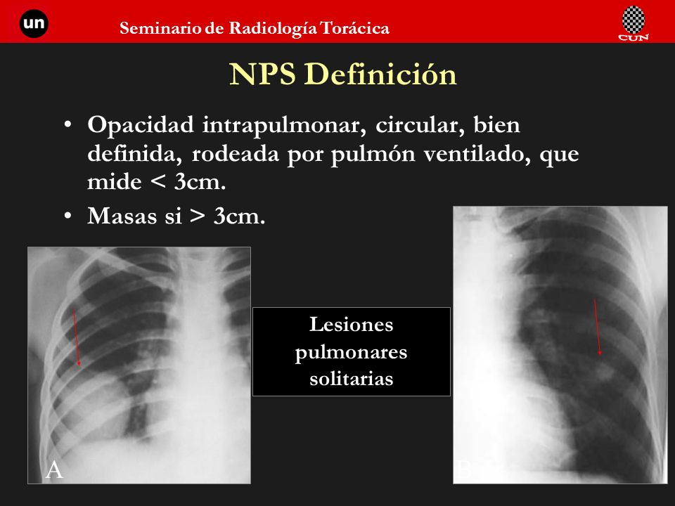 Seminario de Radiología Torácica NPS Definición Opacidad intrapulmonar, circular, bien definida, rodeada por pulmón ventilado, que mide < 3cm. Masas s