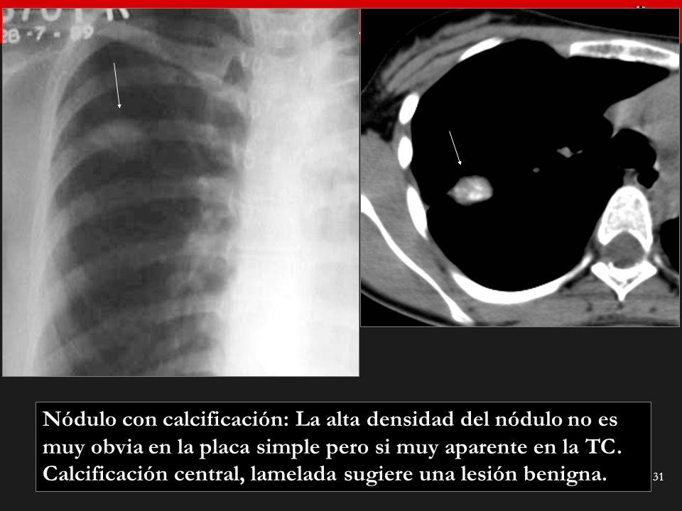 Seminario de Radiología Torácica 31 Nódulo con calcificación: La alta densidad del nódulo no es muy obvia en la placa simple pero si muy aparente en l