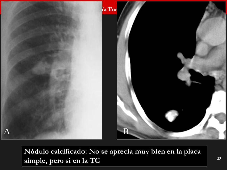Seminario de Radiología Torácica 32 AB Nódulo calcificado: No se aprecia muy bien en la placa simple, pero si en la TC