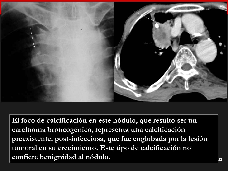 Seminario de Radiología Torácica 33 El foco de calcificación en este nódulo, que resultó ser un carcinoma broncogénico, representa una calcificación p