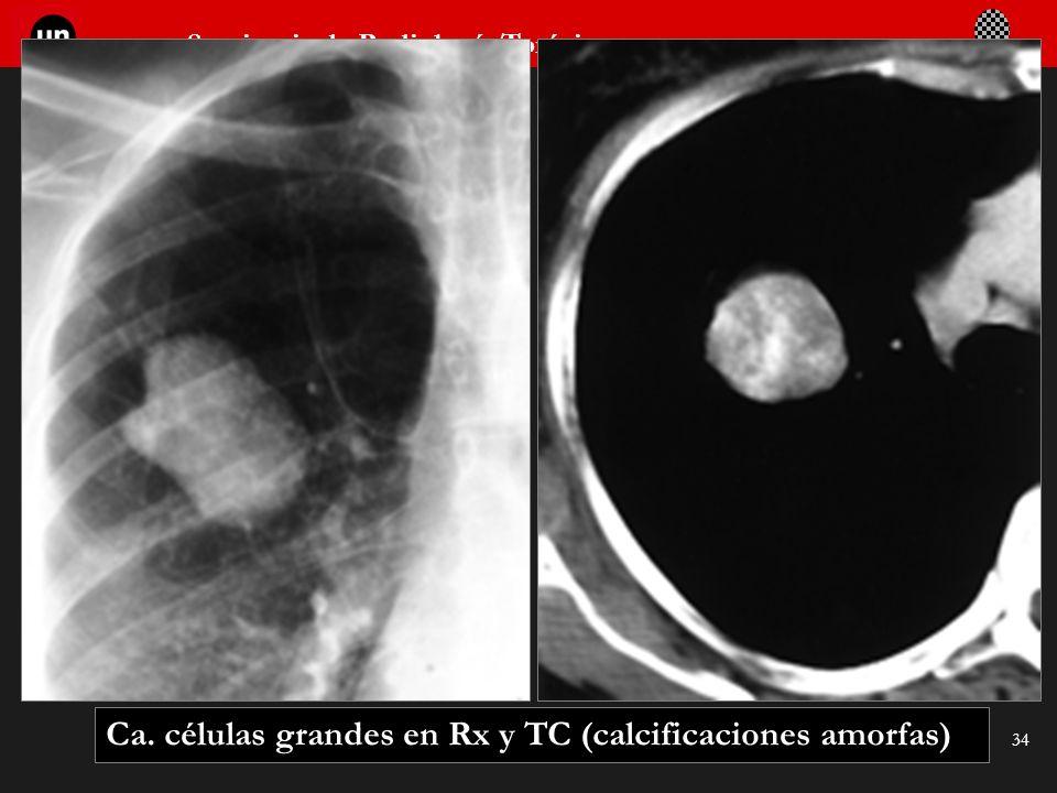 Seminario de Radiología Torácica 34 Ca. células grandes en Rx y TC (calcificaciones amorfas)
