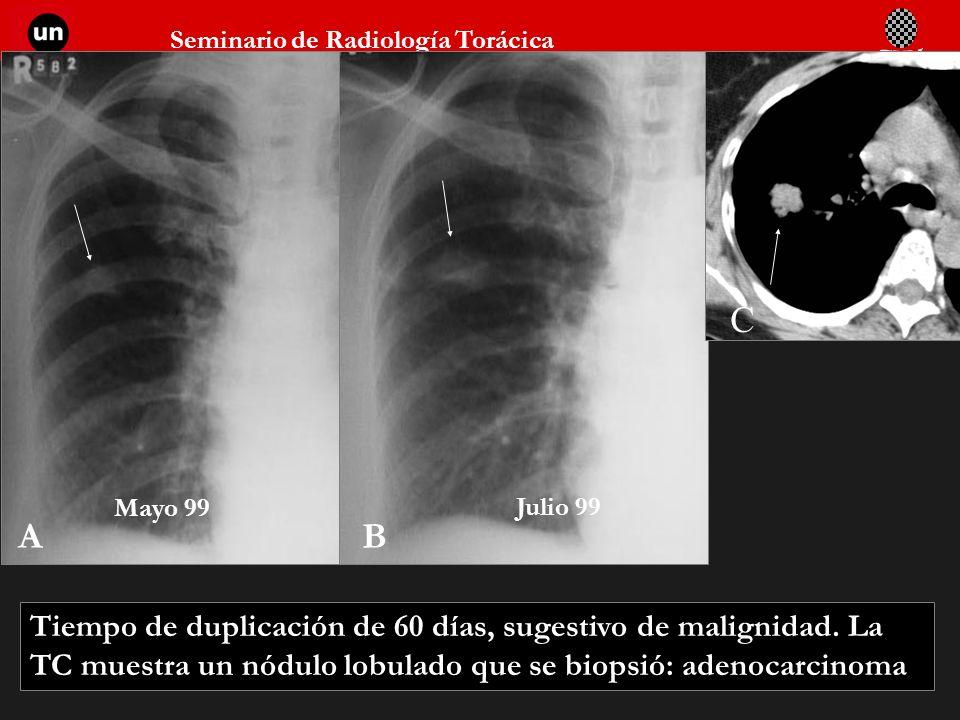 Seminario de Radiología Torácica 36 AB C Tiempo de duplicación de 60 días, sugestivo de malignidad. La TC muestra un nódulo lobulado que se biopsió: a