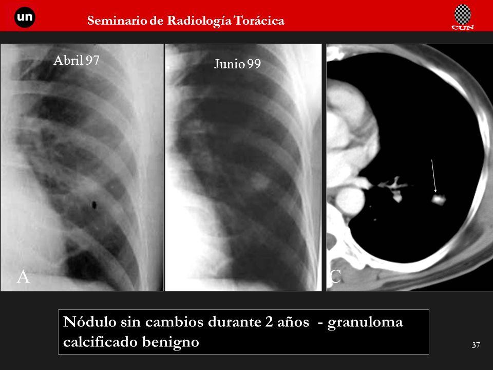 Seminario de Radiología Torácica 37 ABC Abril 97 Junio 99 Nódulo sin cambios durante 2 años - granuloma calcificado benigno