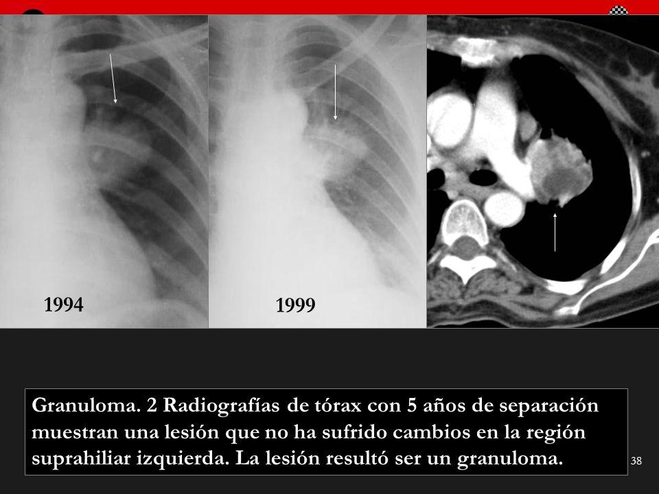 Seminario de Radiología Torácica 38 Granuloma. 2 Radiografías de tórax con 5 años de separación muestran una lesión que no ha sufrido cambios en la re