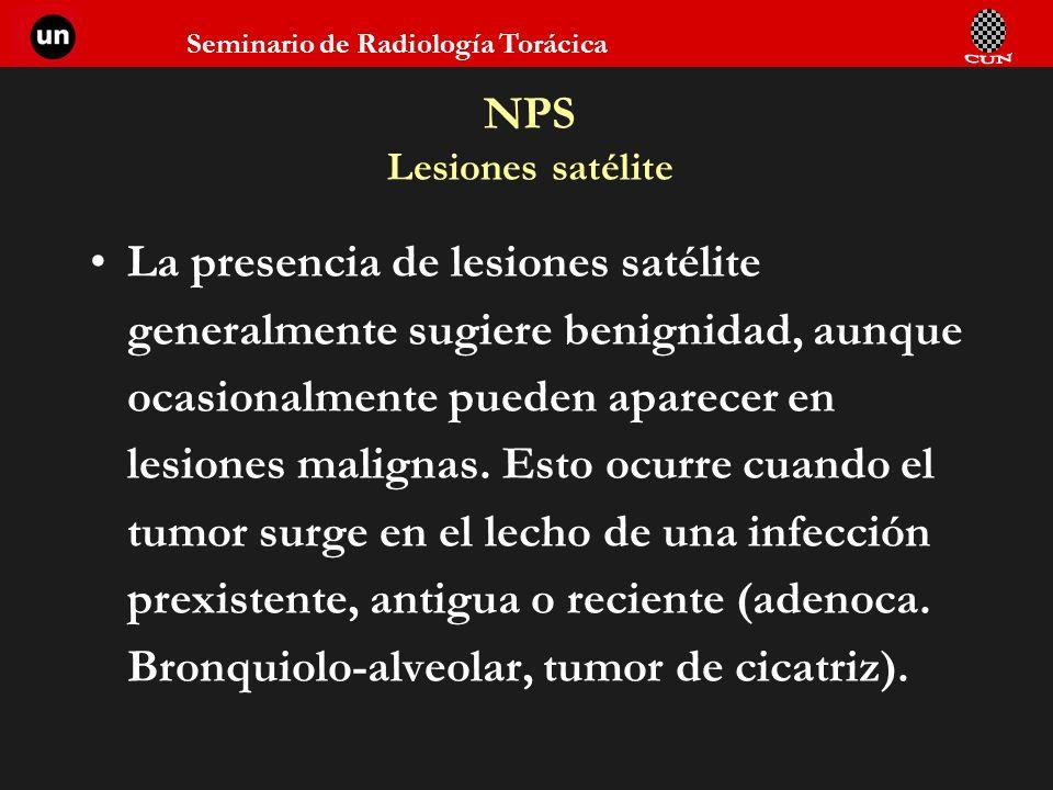 Seminario de Radiología Torácica NPS Lesiones satélite La presencia de lesiones satélite generalmente sugiere benignidad, aunque ocasionalmente pueden