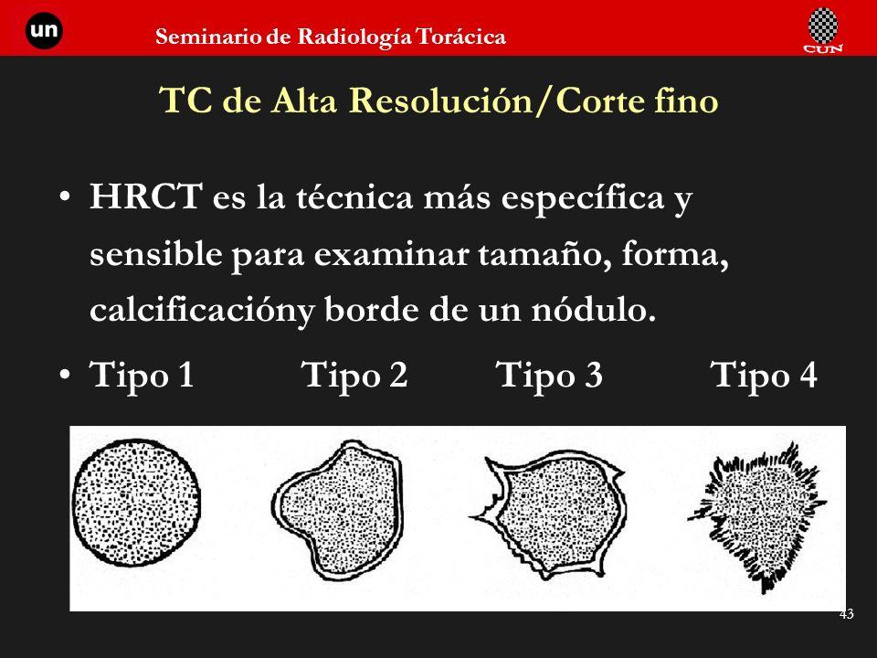 Seminario de Radiología Torácica 43 TC de Alta Resolución/Corte fino HRCT es la técnica más específica y sensible para examinar tamaño, forma, calcifi