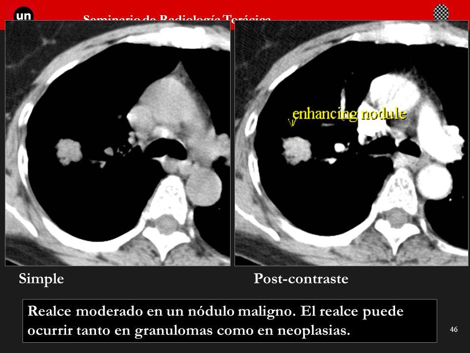 Seminario de Radiología Torácica 46 Realce moderado en un nódulo maligno. El realce puede ocurrir tanto en granulomas como en neoplasias. SimplePost-c