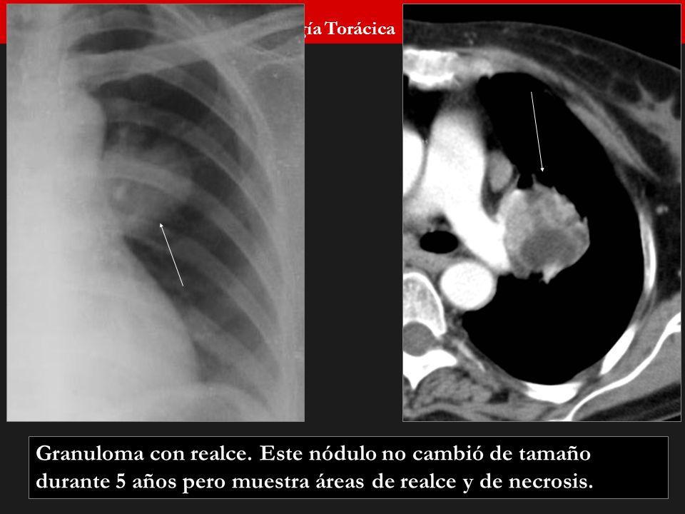 Seminario de Radiología Torácica 47 Granuloma con realce. Este nódulo no cambió de tamaño durante 5 años pero muestra áreas de realce y de necrosis.