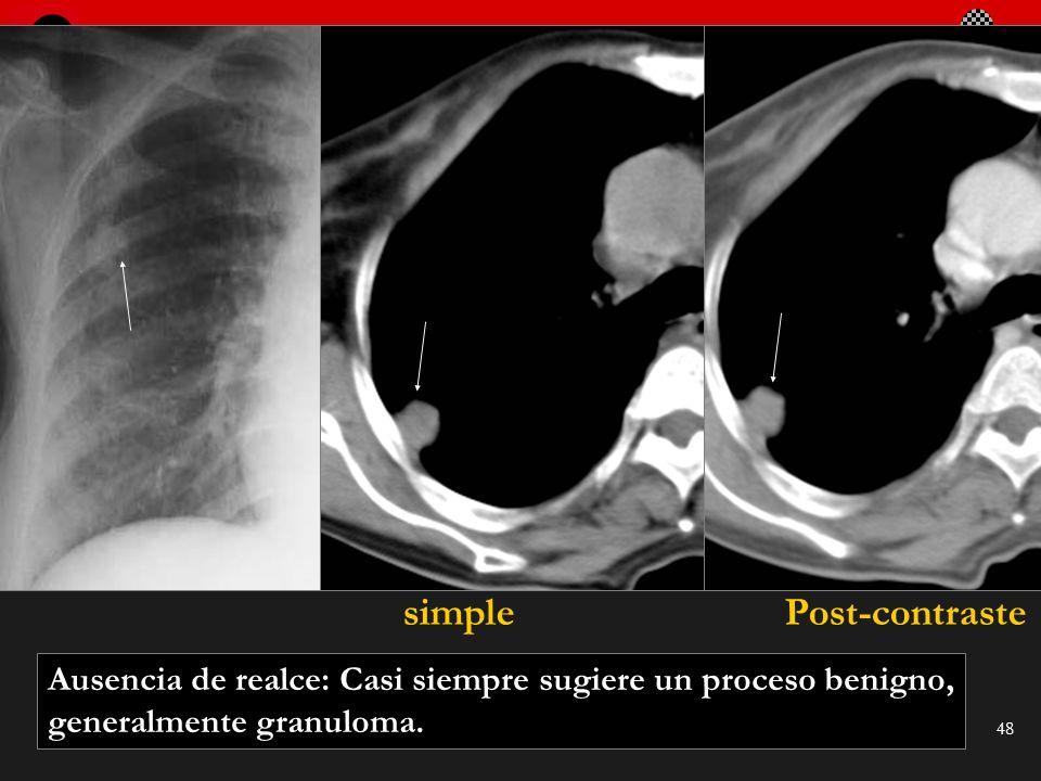 Seminario de Radiología Torácica 48 Ausencia de realce: Casi siempre sugiere un proceso benigno, generalmente granuloma. simplePost-contraste