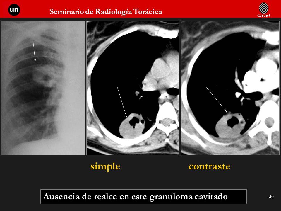 Seminario de Radiología Torácica 49 Ausencia de realce en este granuloma cavitado simplecontraste