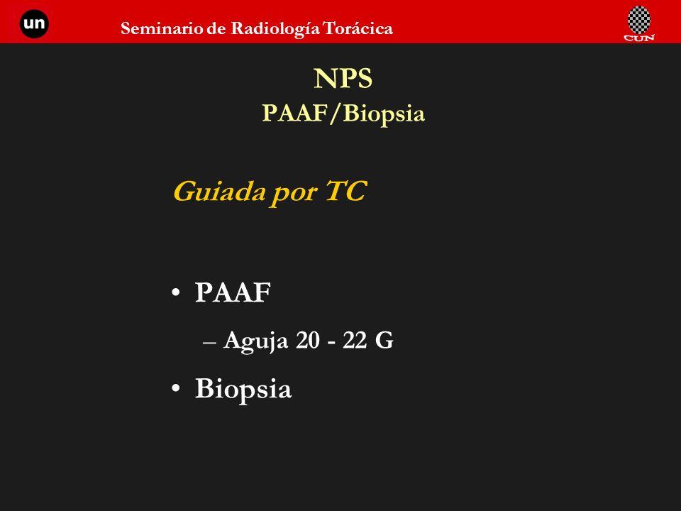 Seminario de Radiología Torácica NPS PAAF/Biopsia Guiada por TC PAAF –Aguja 20 - 22 G Biopsia