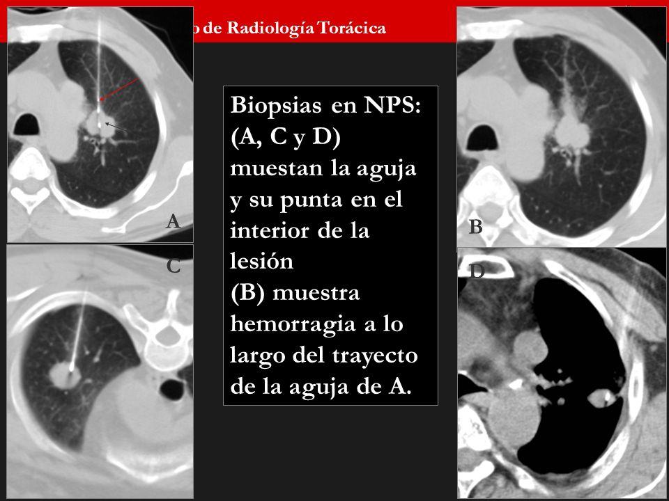 Seminario de Radiología Torácica 53 A C B D Biopsias en NPS: (A, C y D) muestan la aguja y su punta en el interior de la lesión (B) muestra hemorragia
