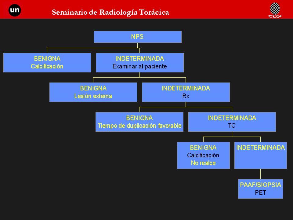 Seminario de Radiología Torácica