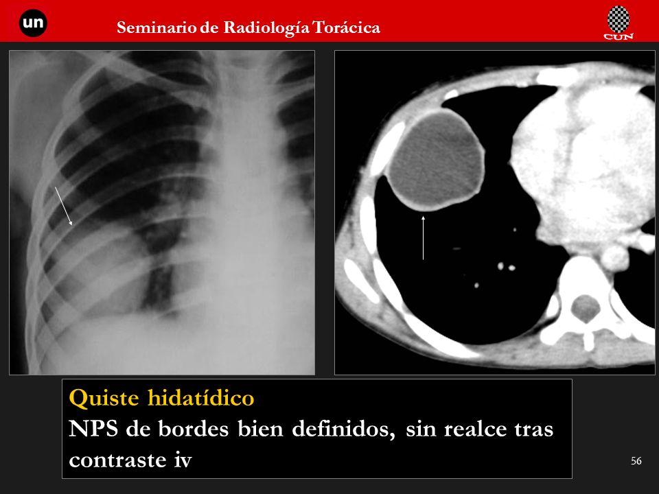 Seminario de Radiología Torácica 56 Quiste hidatídico NPS de bordes bien definidos, sin realce tras contraste iv