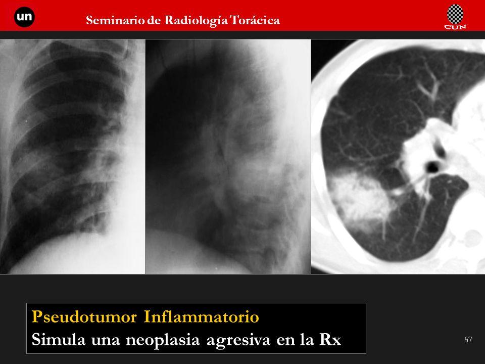 Seminario de Radiología Torácica 57 Pseudotumor Inflammatorio Simula una neoplasia agresiva en la Rx