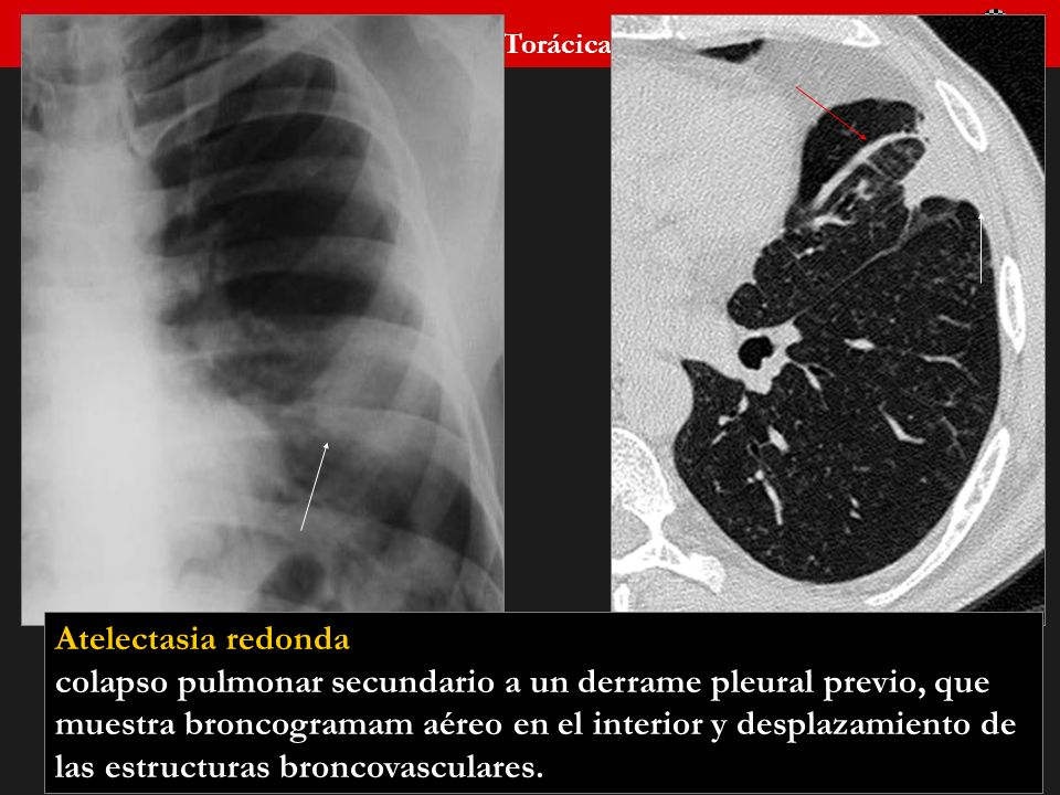 Seminario de Radiología Torácica 58 Atelectasia redonda colapso pulmonar secundario a un derrame pleural previo, que muestra broncogramam aéreo en el