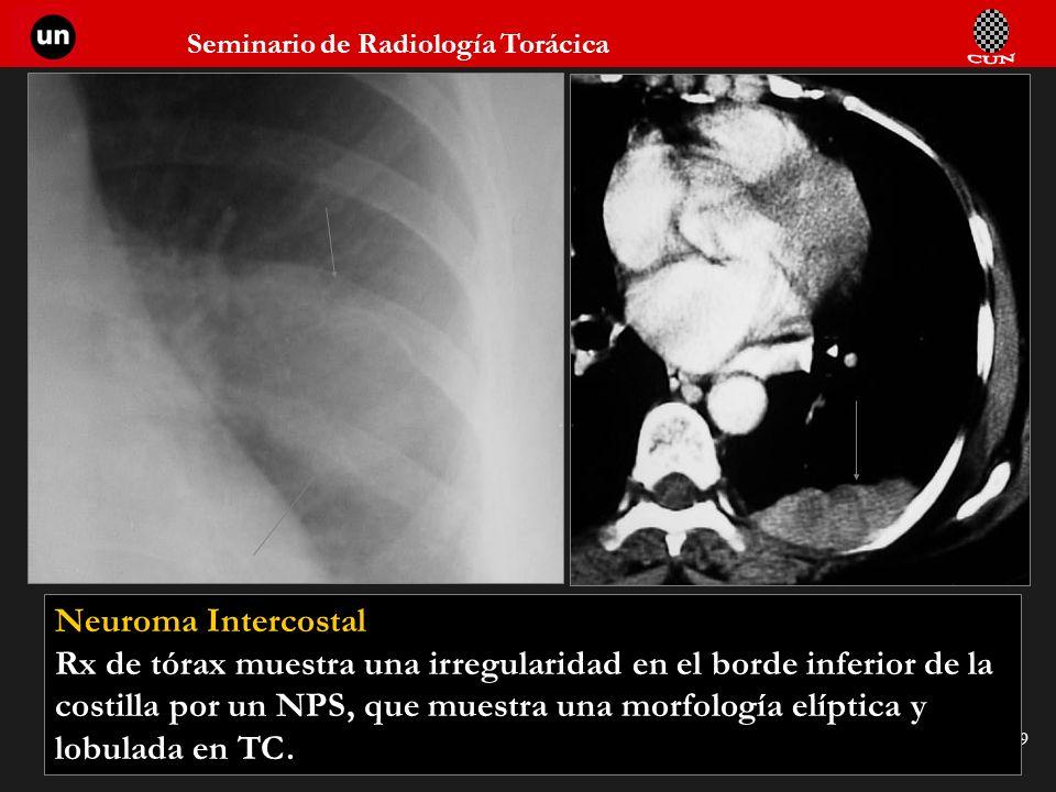 Seminario de Radiología Torácica 59 Neuroma Intercostal Rx de tórax muestra una irregularidad en el borde inferior de la costilla por un NPS, que mues