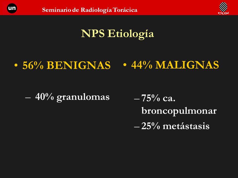 Seminario de Radiología Torácica NPS Etiología 56% BENIGNAS – 40% granulomas 44% MALIGNAS –75% ca. broncopulmonar –25% metástasis