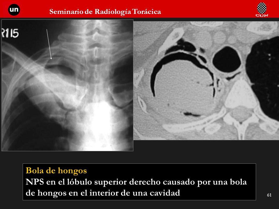 Seminario de Radiología Torácica 61 Bola de hongos NPS en el lóbulo superior derecho causado por una bola de hongos en el interior de una cavidad