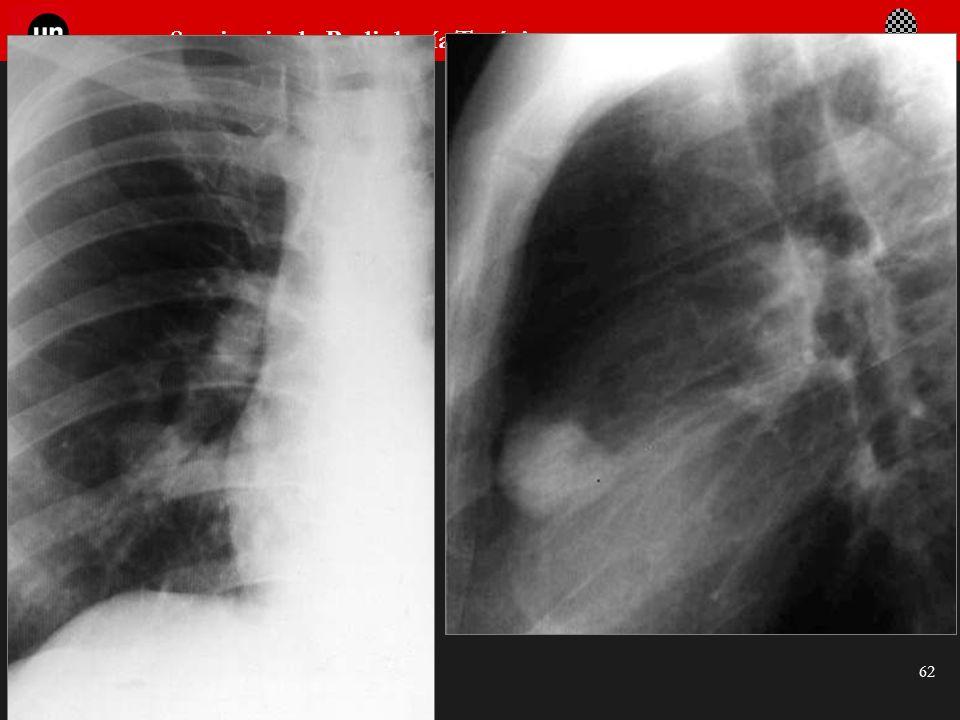 Seminario de Radiología Torácica 62