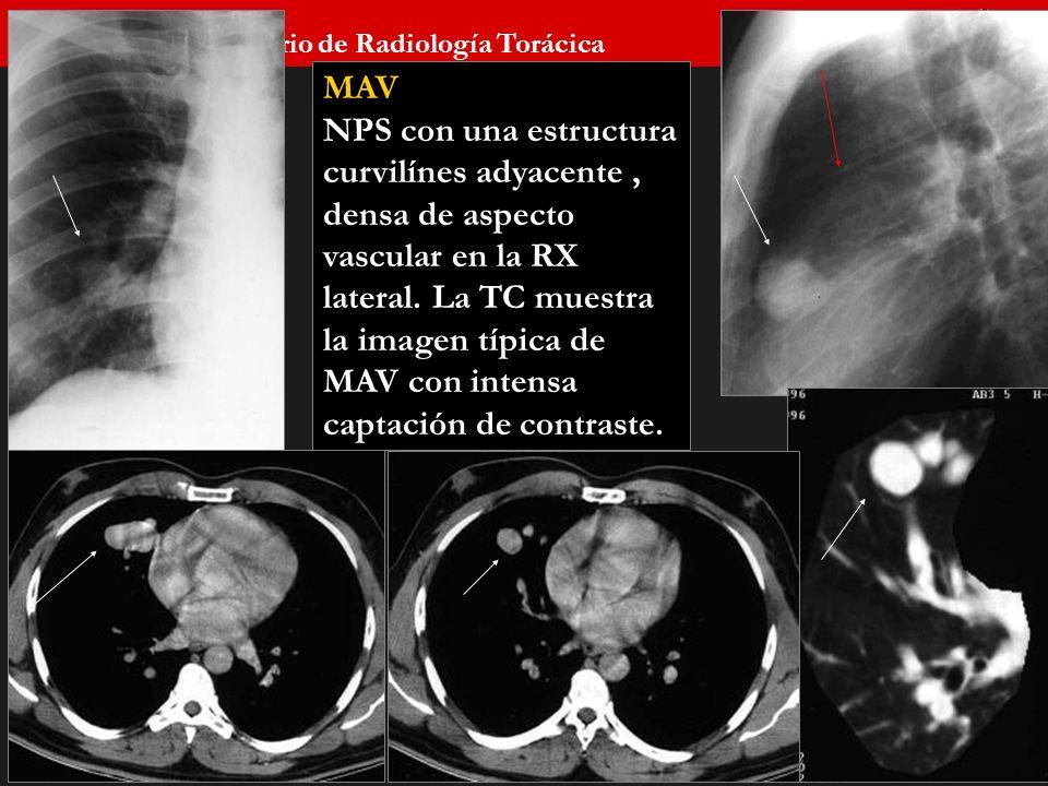 Seminario de Radiología Torácica 63 MAV NPS con una estructura curvilínes adyacente, densa de aspecto vascular en la RX lateral. La TC muestra la imag